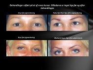 Billeder permanent make-up før og efter.pdf - City Wellness