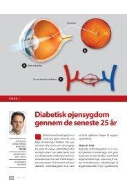 diabetisk øjensygdom gennem de seneste 5 år