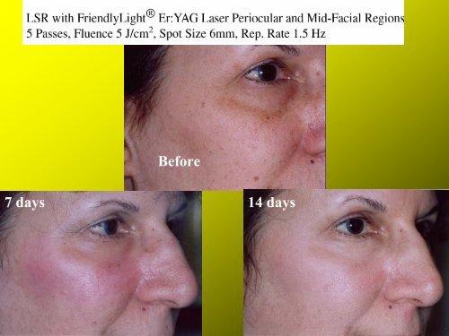 Facial Skin Rejuvenation With FriendlyLight Er:YAG Laser