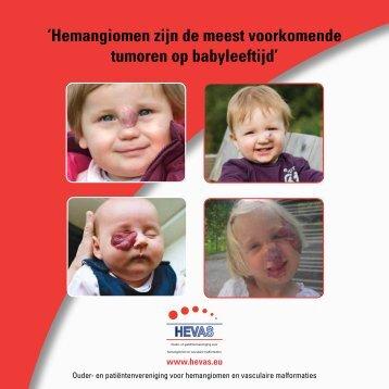 'Hemangiomen zijn de meest voorkomende tumoren op ... - Hevas