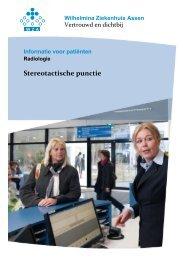 Stereotactische punctie - Wilhelmina Ziekenhuis Assen