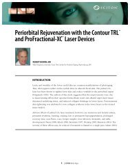 Periorbital Rejuvenation with the Contour TRL™ and ProFractional ...