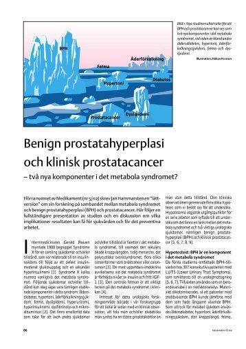 benign prostatahyperplasi