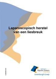 Laparoscopisch herstel van een liesbreuk