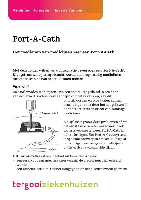 Port-A-Cath [130kb] Chirurgie - Tergooi