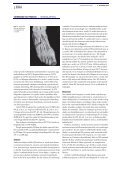 Isoleret nervus suralis- skade - Patientforsikringen - Page 2