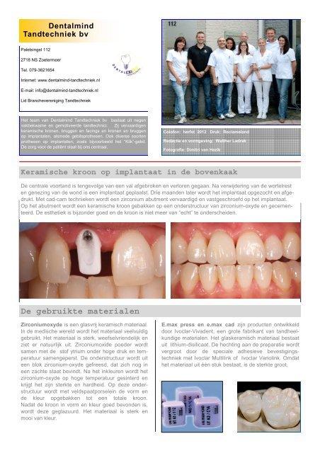 Download - Dentalmind Tandtechniek