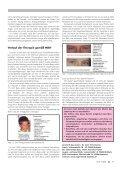 Prismatische Korrektion gemäß MKH bei Kindern und Jugendlichen - Seite 4