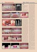 PDF 4 MB - Consilium Medicum - Page 2