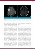 Epilepsie en gliomen: een dubbel probleem - Page 2