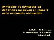 Syndrome de compression déficitaire au Guyon en rapport avec un ...