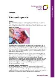 Liesbreukoperatie - Streekziekenhuis Koningin Beatrix