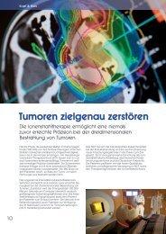 Tumoren zielgenau zerstören