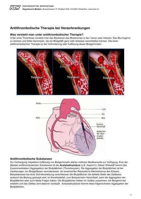 Antithrombotische Therapie - im Kantonsspital Winterthur