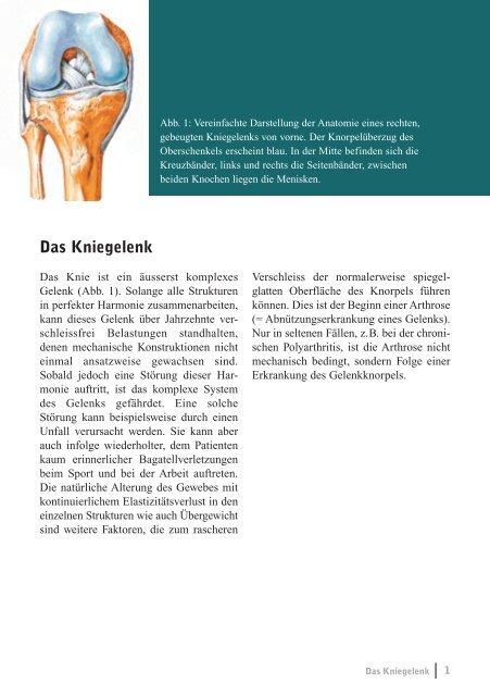 Das künstliche Kniegelenk - im Kantonsspital Winterthur