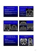Wie befunde ich ein pathologisches NNH-CT Wie befunde ich ein ... - Seite 2