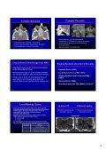 Wie befunde ich ein pathologisches NNH-CT Wie befunde ich ein ... - Seite 4