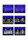 Wie befunde ich ein pathologisches NNH-CT Wie befunde ich ein ... - Seite 5