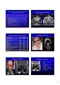 Wie befunde ich ein pathologisches NNH-CT Wie befunde ich ein ... - Seite 7