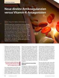 Neue direkte Antikoagulanzien versus Vitamin-K-Antagonisten