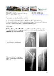 1/8 Versorgung von Knochenbrüchen am Bein In dieser ... - Asklepios