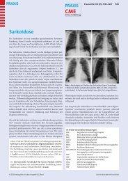 Sarkoidose - Berner Institut für Hausarztmedizin BIHAM - Universität ...