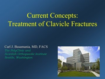 Current Concepts: Treatment of Clavicle Fractures - CMX Travel
