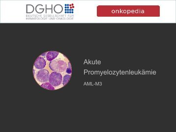 Akute Promyelozytäre Leukämie – AML M3 - Onkopedia