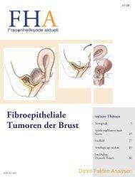 Fibroepitheliale Tumoren der Brust - Frauenheilkunde aktuell