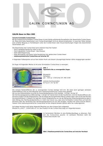 03_März 2005.pdf - Galifa Contactlinsen AG