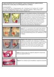 Temporomandibular joint and mandibular ramus ... - garpa