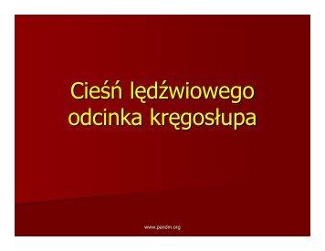 Cieśń lędźwiowa.pdf - Pandm