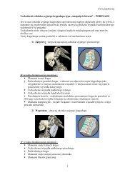 www.pandm.org 1 Uszkodzenie odcinka szyjnego kręgosłupa typu ...