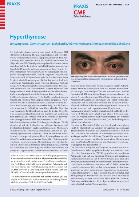 Hyperthyreose - Fortbildung - UniversitätsSpital Zürich