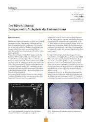 Benigne ossäre Metaplasie des Endometriums - Frauenheilkunde ...