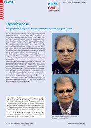Hypothyreose - Fortbildung - UniversitätsSpital Zürich