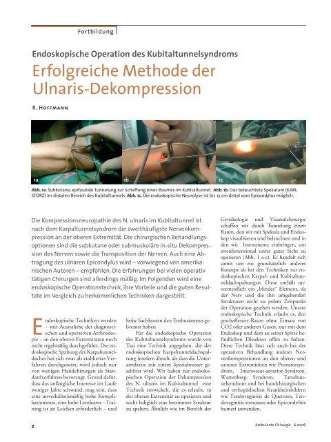 Erfolgreiche Methode der Ulnaris-Dekompression - Endoskopische ...