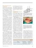 Erfolgreiche Methode der Ulnaris-Dekompression - Endoskopische ... - Seite 2