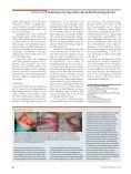 Erfolgreiche Methode der Ulnaris-Dekompression - Endoskopische ... - Seite 5