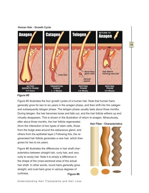Understanding Hair Transplants and Hair Loss - Pacific Hair