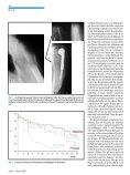 DifferenzierteTherapiemetastatischerLäsionen desKnochens - Seite 2
