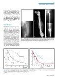 DifferenzierteTherapiemetastatischerLäsionen desKnochens - Seite 3