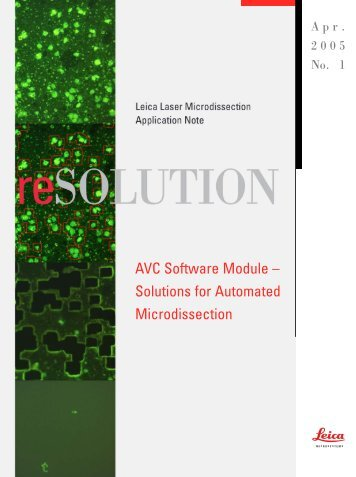 AVC Software Module – Solutions for Automated Microdissection