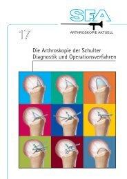 Die Arthroskopie der Schulter Diagnostik und Operationsverfahren