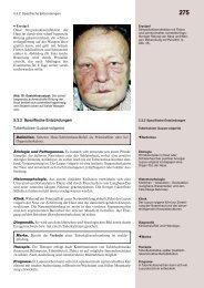 Nase, Nasennebenhöhlen, Mittelgesicht, Vordere Schädelbasis