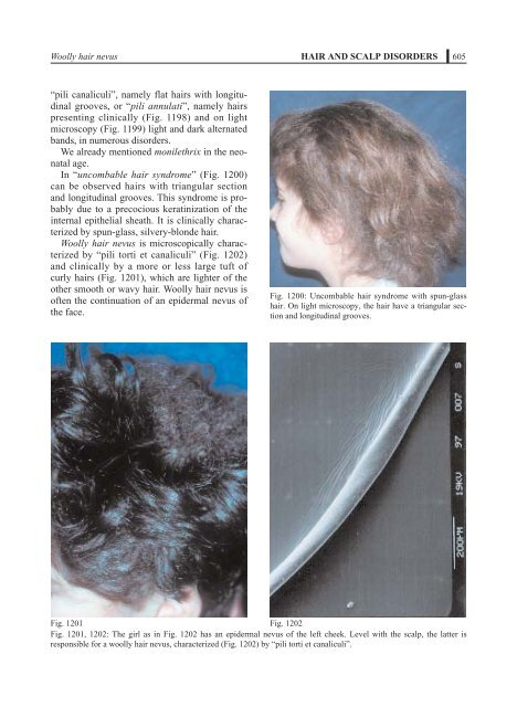 Hair and scalp disorders. - Dermatologia pediatrica