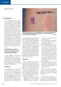 Arzneimittel- Unverträglichkeit - Arbeitsgruppe Allergologie - Seite 6