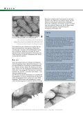 Bodenbearbeitung - Seite 2