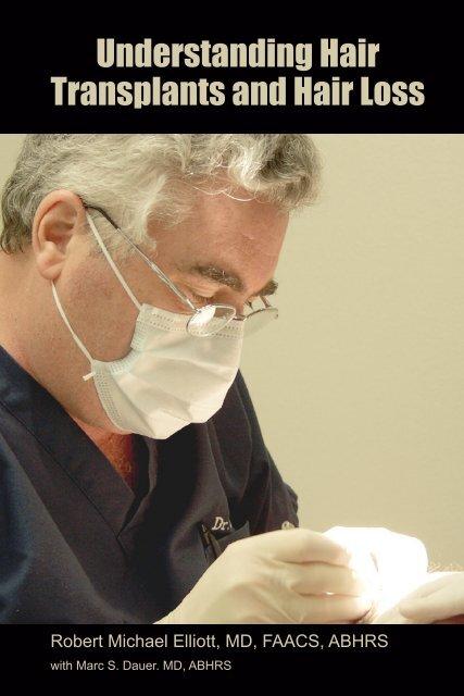 Understanding Hair Transplants and Hair Loss - Hair Transplant Los ...