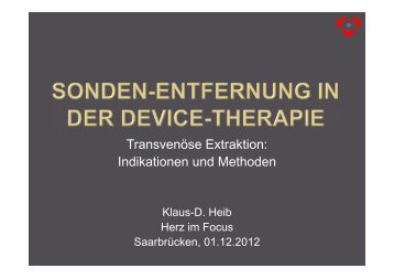 Sonden-Entfernung in der Device-Therapie - Herzzentrum Saar